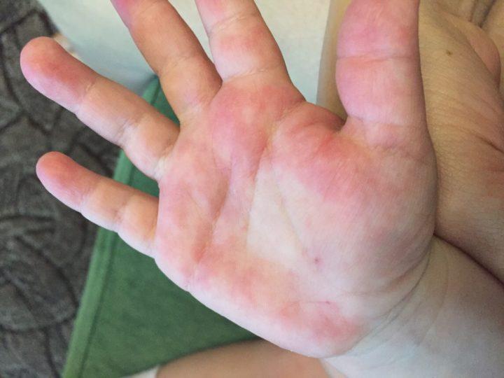 Аллергические проявления на руках