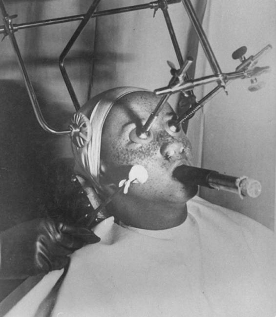 Удаление веснушек методом карбокситерапии