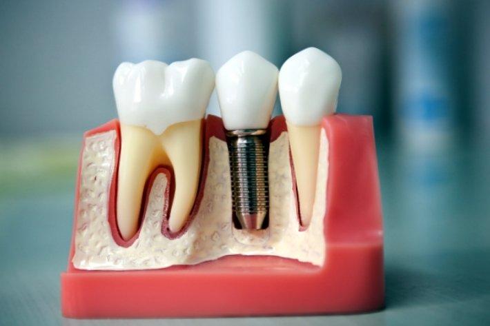 Макет имплантов зубов