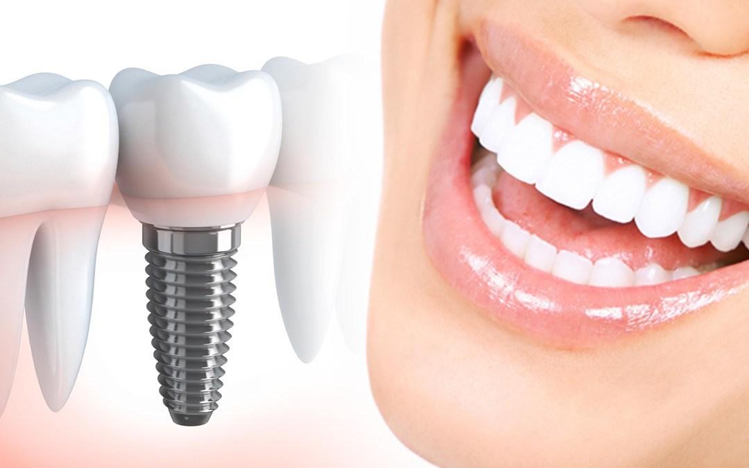 Зубной имплант и улыбка
